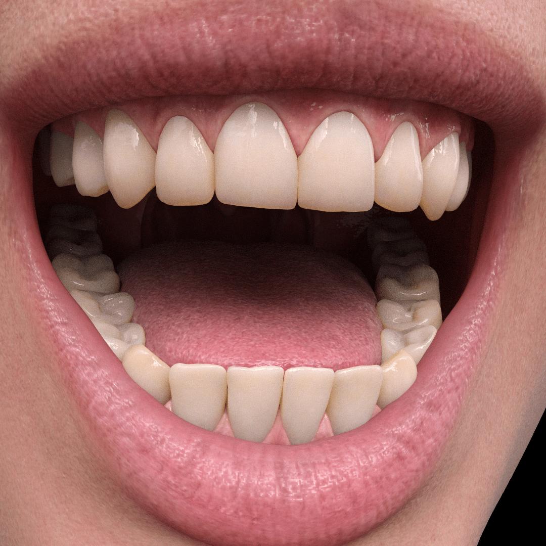 daz3d genesis 8.1 mouth